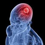 Опухоль головного мозга - лечение рака мозга в Израиле