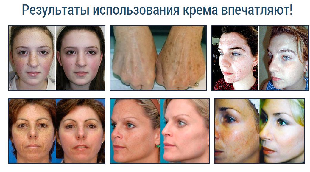 Отбеливающие маска от пигментных пятен для лица в домашних условиях